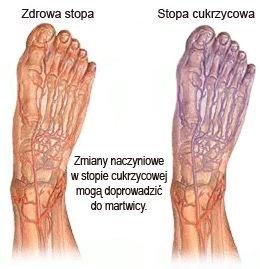 stopa cukrzycowa martwica zdjecie